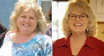 Cottage Center for Weight Loss Surgery Patient - Kathi Dickerson